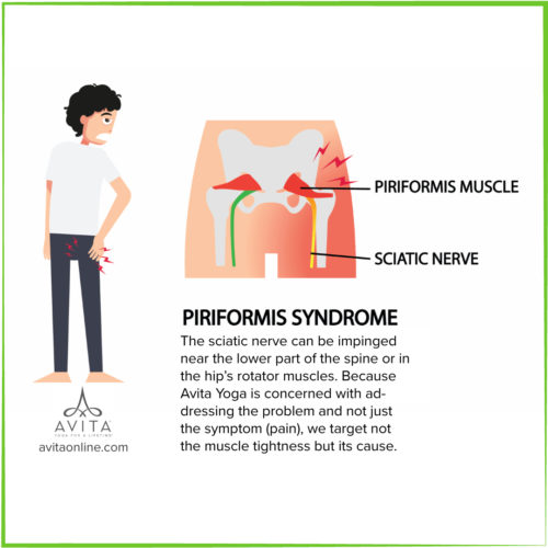 Piriformis Syndrome Avita Yoga The sciatic nerve can be impinged near the lower part of the spine or in the hip's rotator muscles. Because Avita Yoga is concerned with addressing the problem and not just the symptom (pain), we target not the muscle tightness but its cause. On Demand Yoga